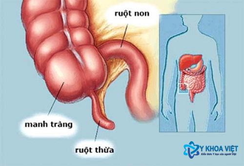 nguyen_nhan_trieu_chung_va_dieu_tri_benh_viem_ruot_thua