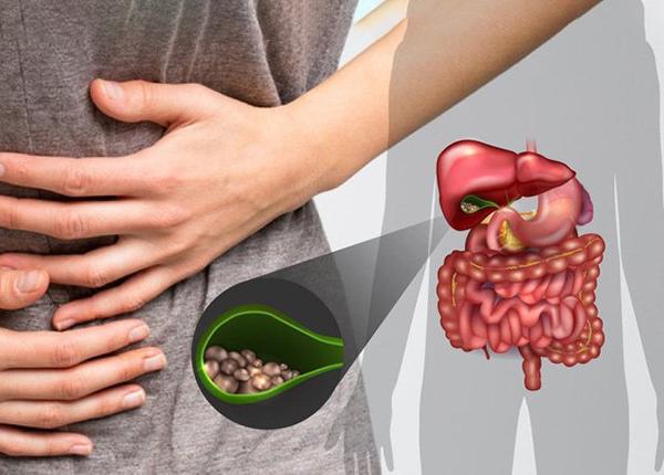 Những triệu chứng sỏi túi mật cần nào mà bạn cần chú ý
