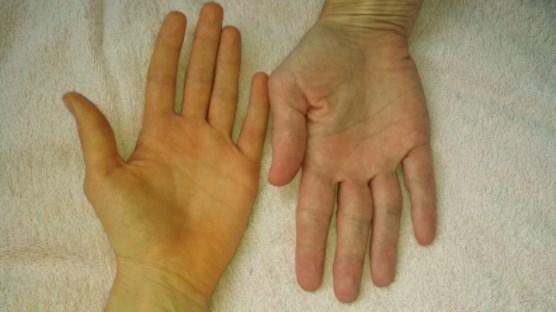 Biểu hiện nhìn thấy được của căn bệnh vàng da