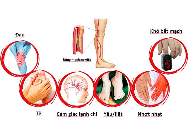 Bệnh động mạch ngoại biên thường gây ảnh hưởng rõ rệt trên hai chân