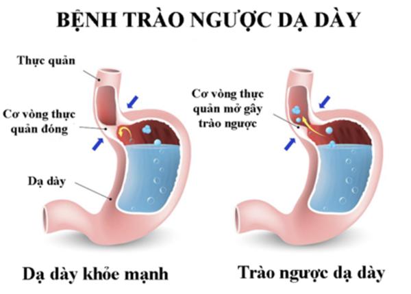 Bệnh trào ngược dạ dày thực quản – Bệnh của lối sống hiện đại
