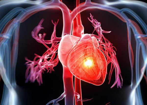 Các bệnh lý về tim mạch là nguyên nhân hàng đầu gây tử vong trên toàn thế giới
