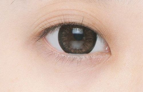 """Mắt 3 mí """"hô biến"""" thành 2 mí đều đẹp long lanh"""