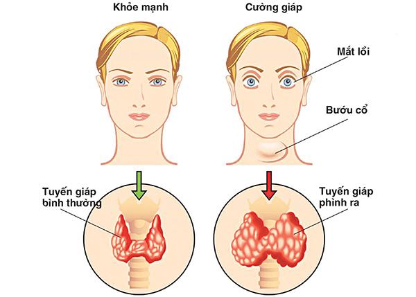 Sự khác nhau giữa tuyến giáp của người bình thường và bệnh nhân mắc K tuyến giáp