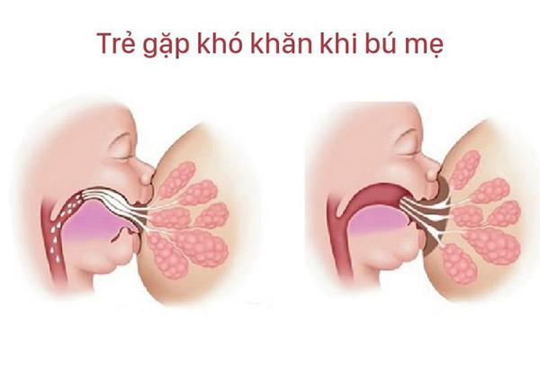Thắng lưỡi ngắn, cử động lưỡi bị hạn chế là dấu hiệu rẻ bị dính thắng lưỡi.