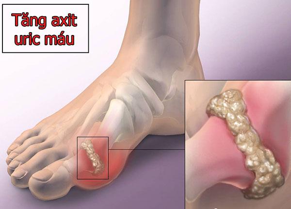 Tinh thể acid uric tích tụ tại các khớp xương có thể gây nên bệnh gout