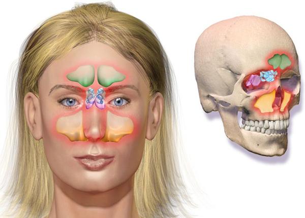 Vị trí của xoang trán (màu xanh lá) nằm phía trên hốc mắt, ngang lông mày và chếch về phía trên trán