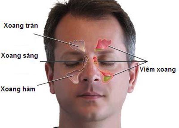 Viêm xoang hàm là tình trạng viêm niêm mạc xoang