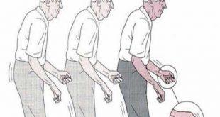 Bệnh Parkinson có thể chữa khỏi được không?