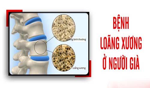 Loãng xương là một căn bệnh rất phổ biến hiện nay