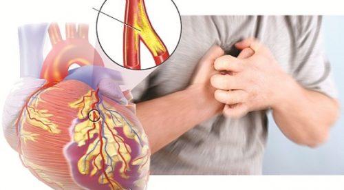 Nguyên nhân gây bệnh tim rất nhiều