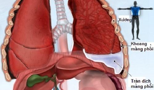 Các cách điều trị bệnh tràn dịch màng phổi