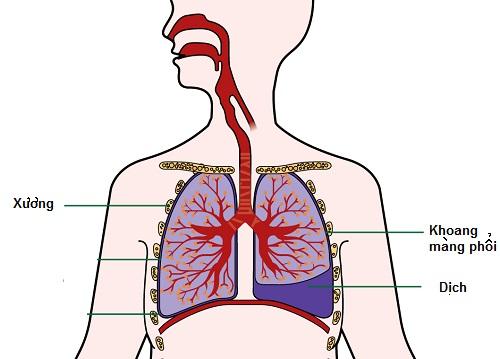 Bệnh tràn dịch màng phổi có thể dẫn đến chết người nếu không chữa kịp thời