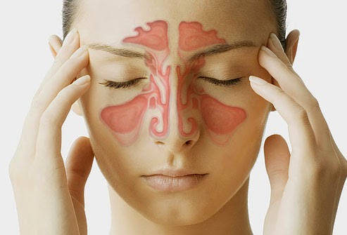Bệnh viêm xoang có nguy hiểm không ?