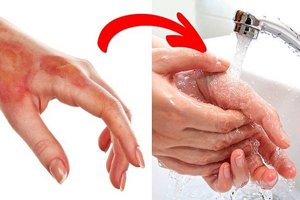 Dùng nước lạnh để vết bỏng không tổn thương sâu