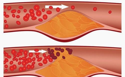 Biện pháp phòng ngừa hình thành cục máu đông