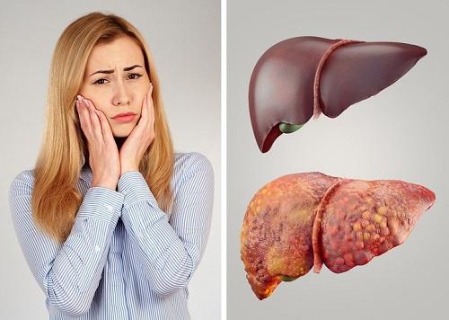 Những dấu hiệu cho thấy cơ thể bạn cần phải giải độc ngay