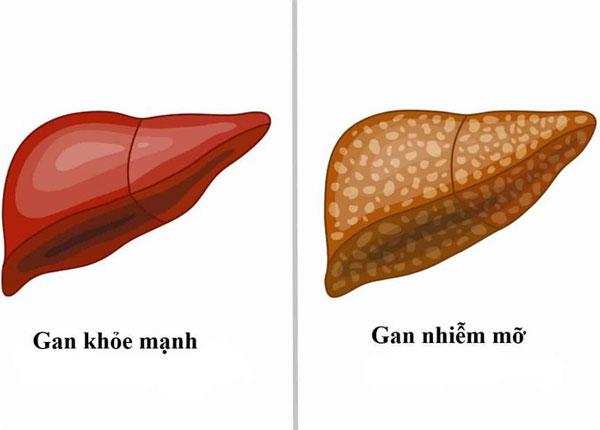 Gan bình thường và gan nhiễm mỡ