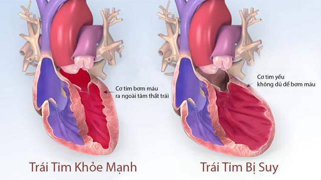 Suy tim căn bệnh nguy hiểm có tỷ lệ tử vong cao