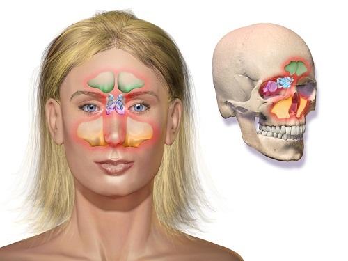 Những biểu hiện đặc trưng của bệnh viêm xoang