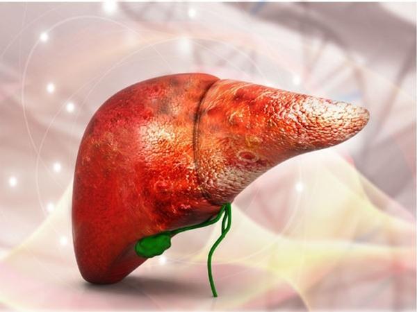 Ung thư gan mắc ở giai đoạn đầu rất khó phát hiện