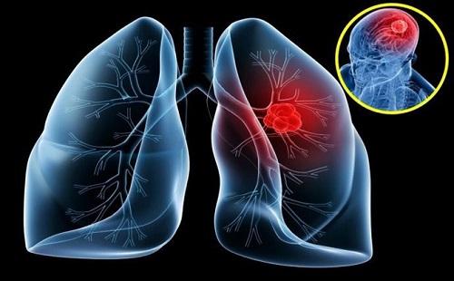 Làm thế nào để phát hiện sớm bệnh ung thư phổi?