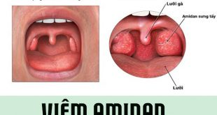 Bệnh viêm Amidan: Nguyên Nhân và cách phòng ngừa