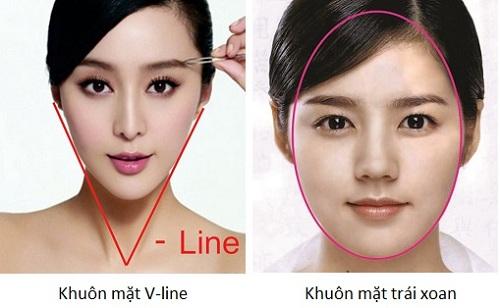 Phẫu thuật gọt mặt trái xoan khác gọt mặt v-line