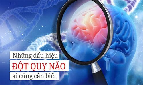 Dấu hiệu và cách xử lý bệnh đột quỵ não