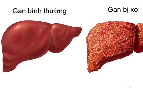 Nguyên nhân gây bệnh xơ gan