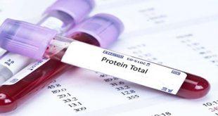 Nồng độ protein trong máu tăng cao là do đâu?