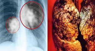 Ung thư phổi mỗi năm có hơn 20.000 ca tử vong tại Việt Nam