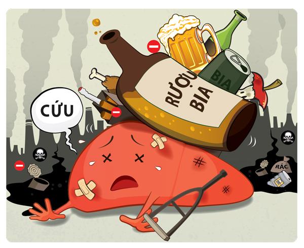 Rượu bia được xác định là nguyên nhân chính gây nên ung thư gan