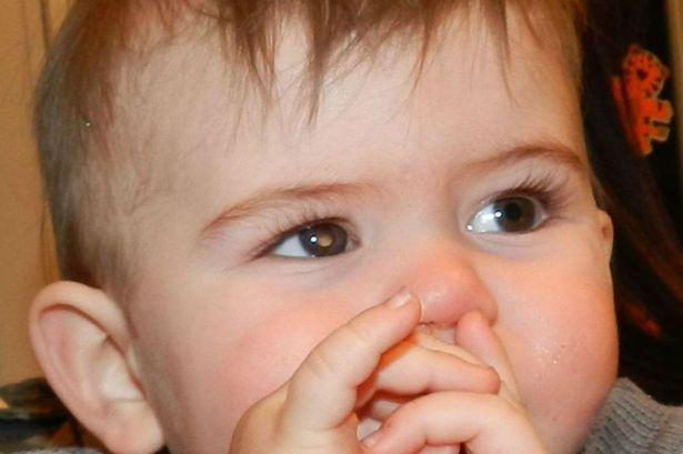 Ung thư võng mạc căn bệnh về mắt nguy hiểm ở trẻ
