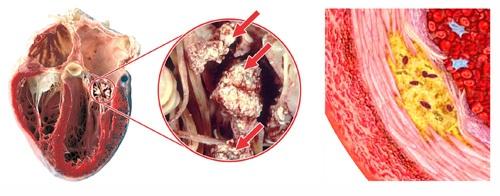 Bệnh viêm cơ tim nguy hiểm như nào?